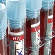 VIH : la Covid pourrait provoquer jusqu'à 150 000 décès supplémentaires