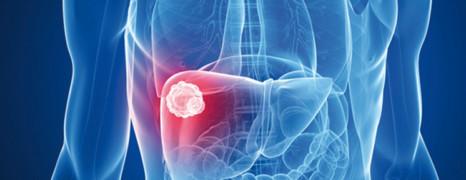 L'OMS appelle à l'offensive contre l'hépatite C