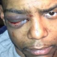 NY : 5 Juifs ultra-orthodoxes accusés d'agression sur un homme noir homo