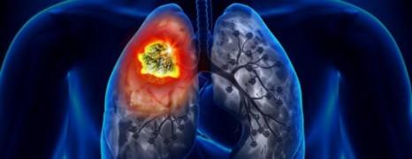 Les fumeurs séropositifs risquent plus de décéder d'un cancer du poumon